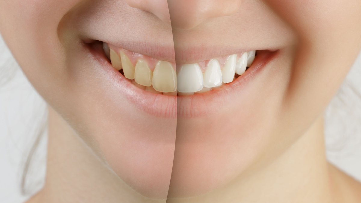 38335384 - teen girl smile before and after teeth whitening