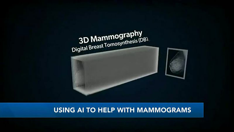 Artificial intelligence technology helping to achieve more accurate mammograms