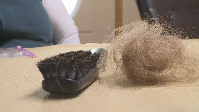 Post-COVID hair loss patient Kelly Ryan shows how much hair she currently loses in one shower